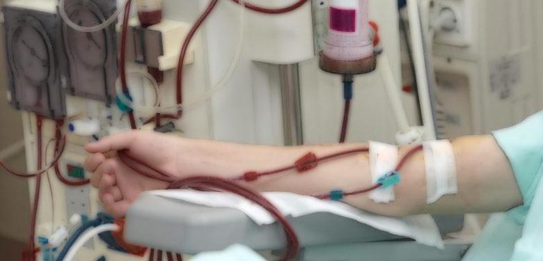 Granuflo for dialysis